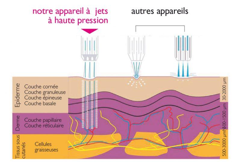Schéma mésothérapie Genève explications
